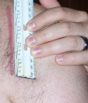 Surgical scar after getting hit...