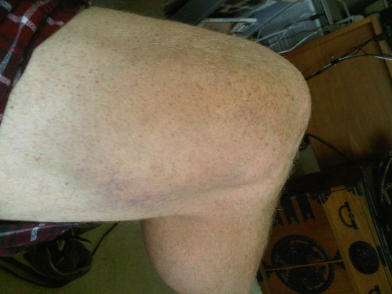 knee blushes when getting to close of handle bar